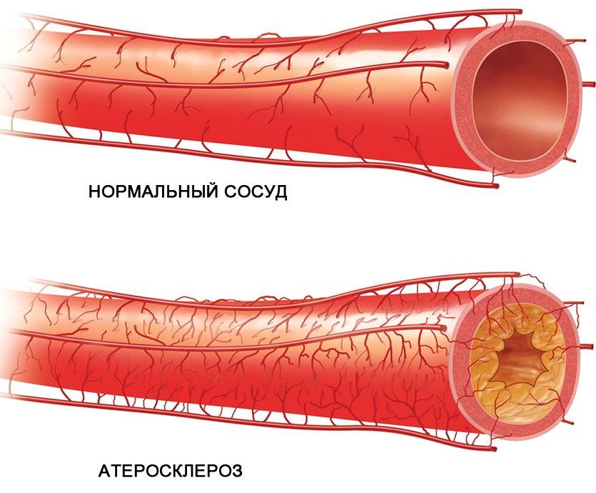 ENAP gyógyszer leírása, hatása, mellékhatásai :: utosfeszt.hu