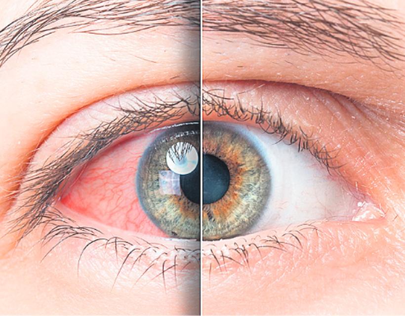 kettős látás magas vérnyomással)