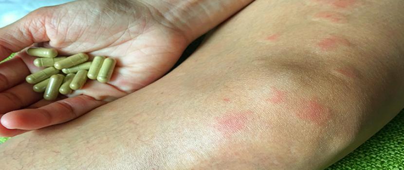 Az artériás magas vérnyomás és a szisztémás lupus erythematosus