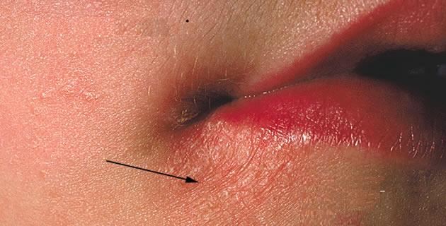 A hirudoterápia gyakorlata (orvosi piócákkal végzett kezelés) és bejárási pontok