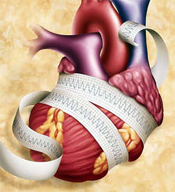 légköri nyomás hipertónia