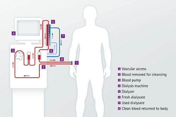 magas vérnyomás hemodialízissel)