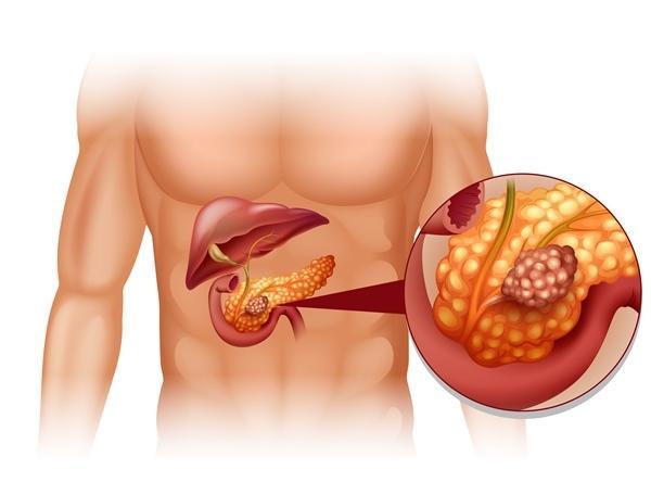 magas vérnyomás kezelése hasnyálmirigy-gyulladással