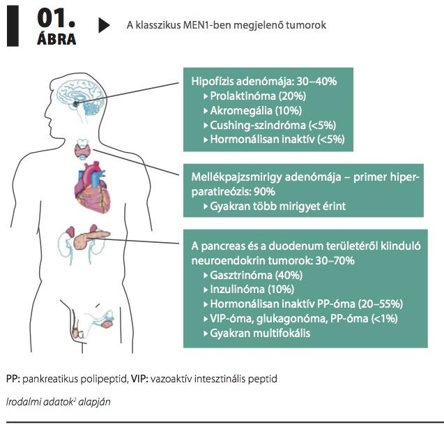 endokrin hipertónia feokromocitoma