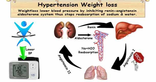 gyógyítható-e a 2-3 fokozatú magas vérnyomás munka magas vérnyomás