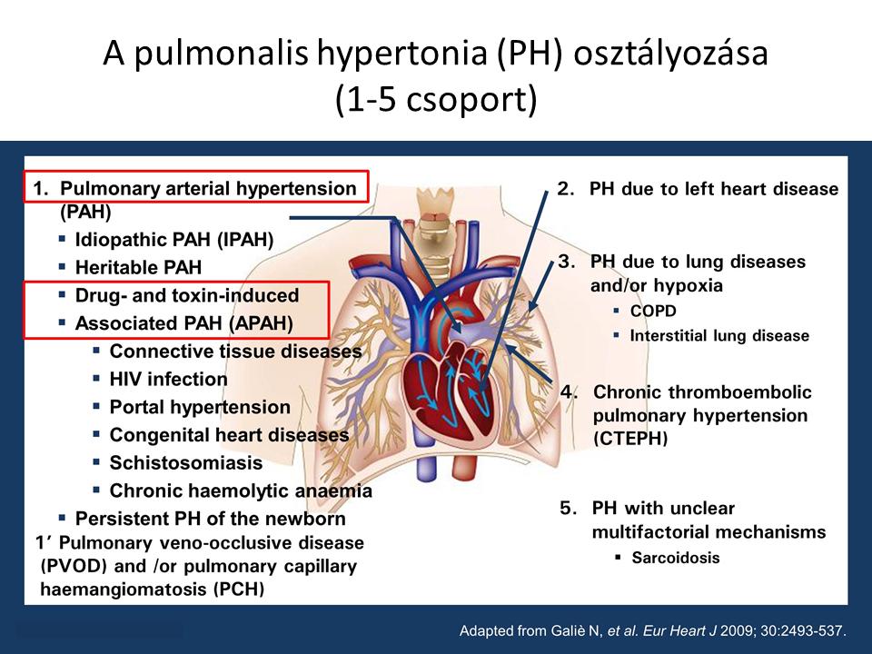 pulmonalis vénás hipertónia)