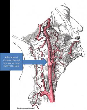 carotis arteria hypertonia progeszteron és magas vérnyomás