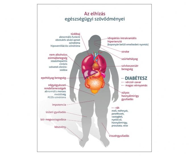 a magas vérnyomás elhízás lehet