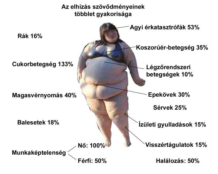 a hipertónia okainak ezoterikája)