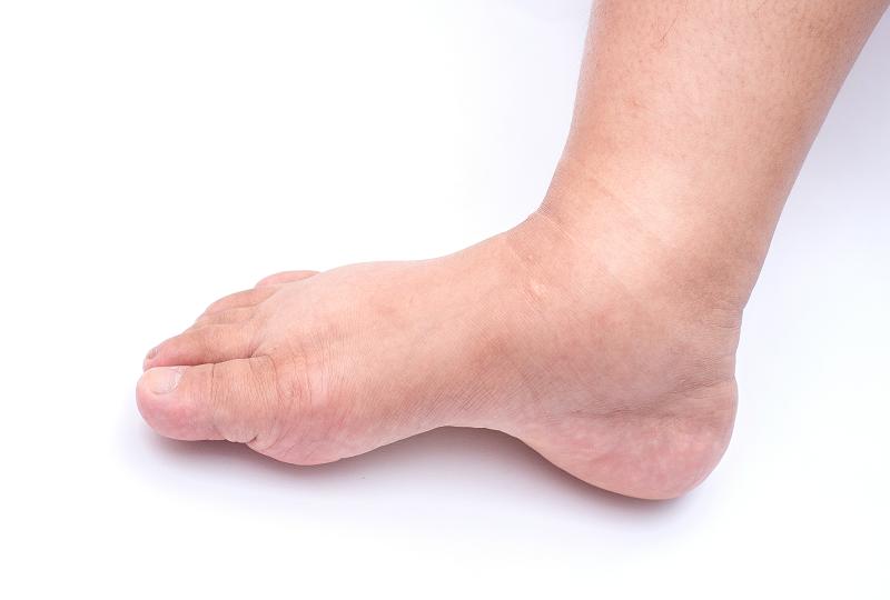 a lábak duzzanata a magas vérnyomás kezelésénél)