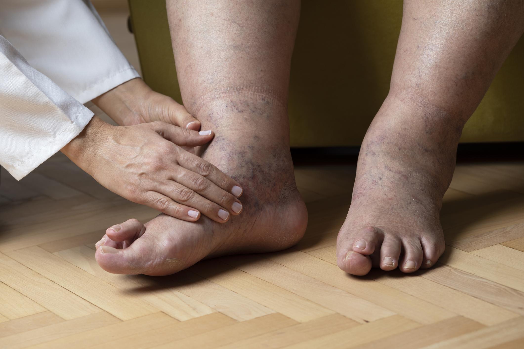 Miért duzzadnak a lábak a magas vérnyomásban)