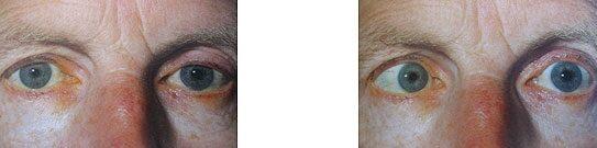 kettős látás magas vérnyomással