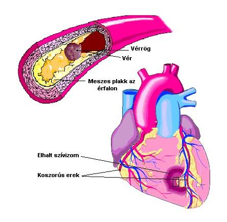 magas koleszterinszintű magas vérnyomás