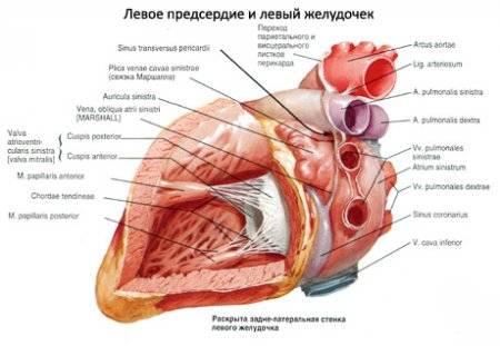 szívmegállás hipertóniával