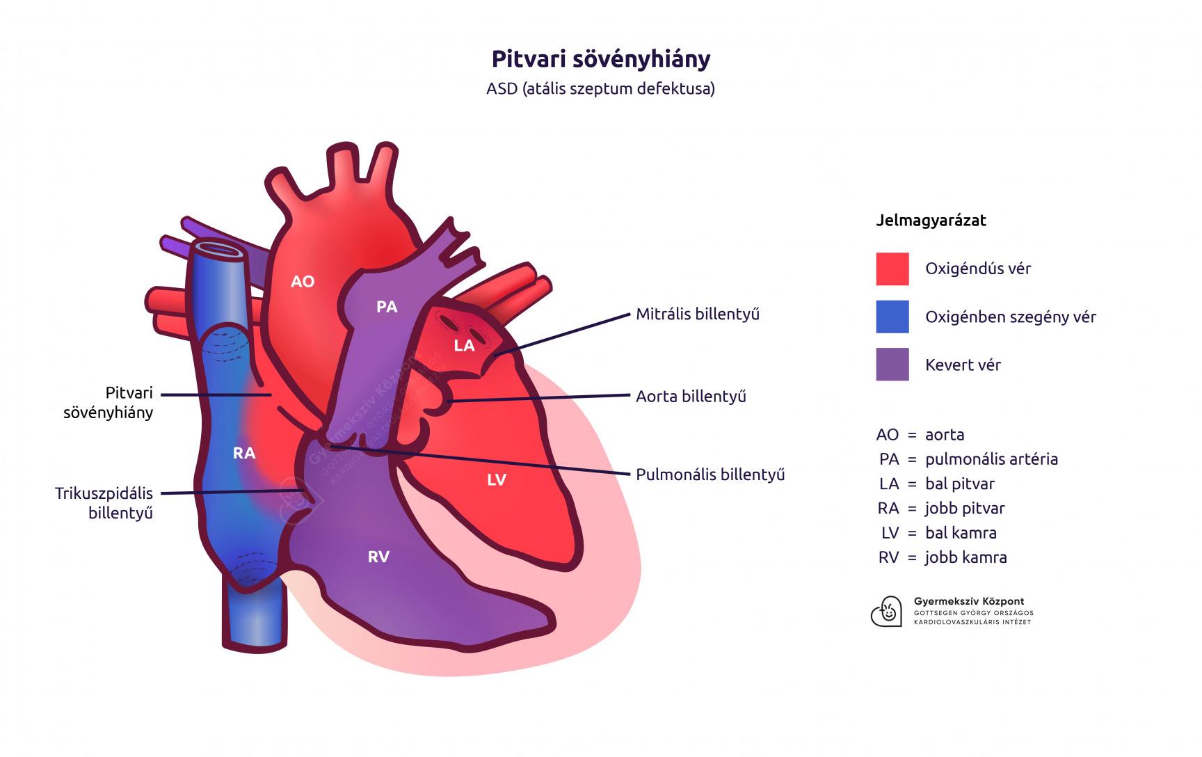 Veleszületett szívhibák tünetei és kezelése