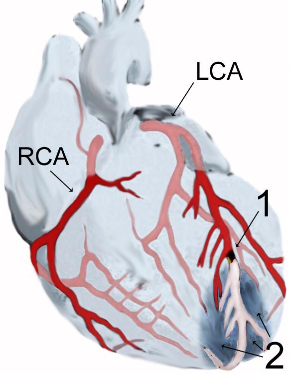 rák és magas vérnyomás kombinációja szívgyógyszer magas vérnyomás ellen