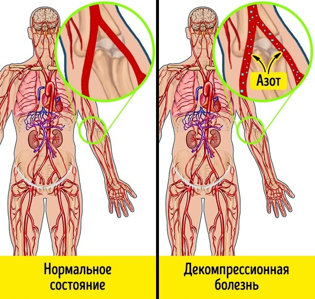alacsony légköri nyomású hipertónia)