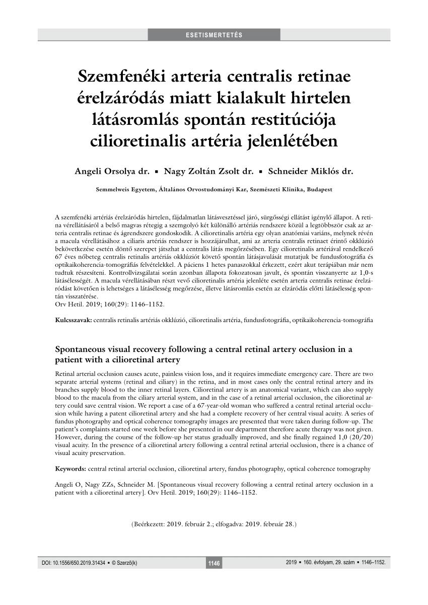 SZEMFENÉK VIZSGÁLAT PUPILLATÁGÍTÁS NÉLKÜL ÜZLETÜNKBEN! - STYLE OPTIKA