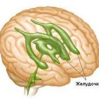 hipertóniás hydrocephalus