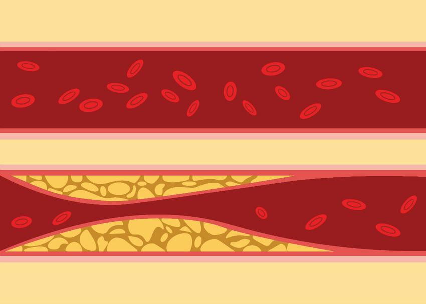 hogyan befolyásolja a magas vérnyomás az ereket)