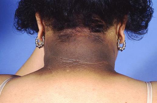 a ccc hipertónia betegségei