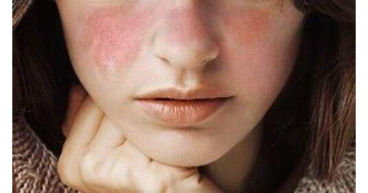 szisztémás lupus erythematosus - Keresés | eLitMed