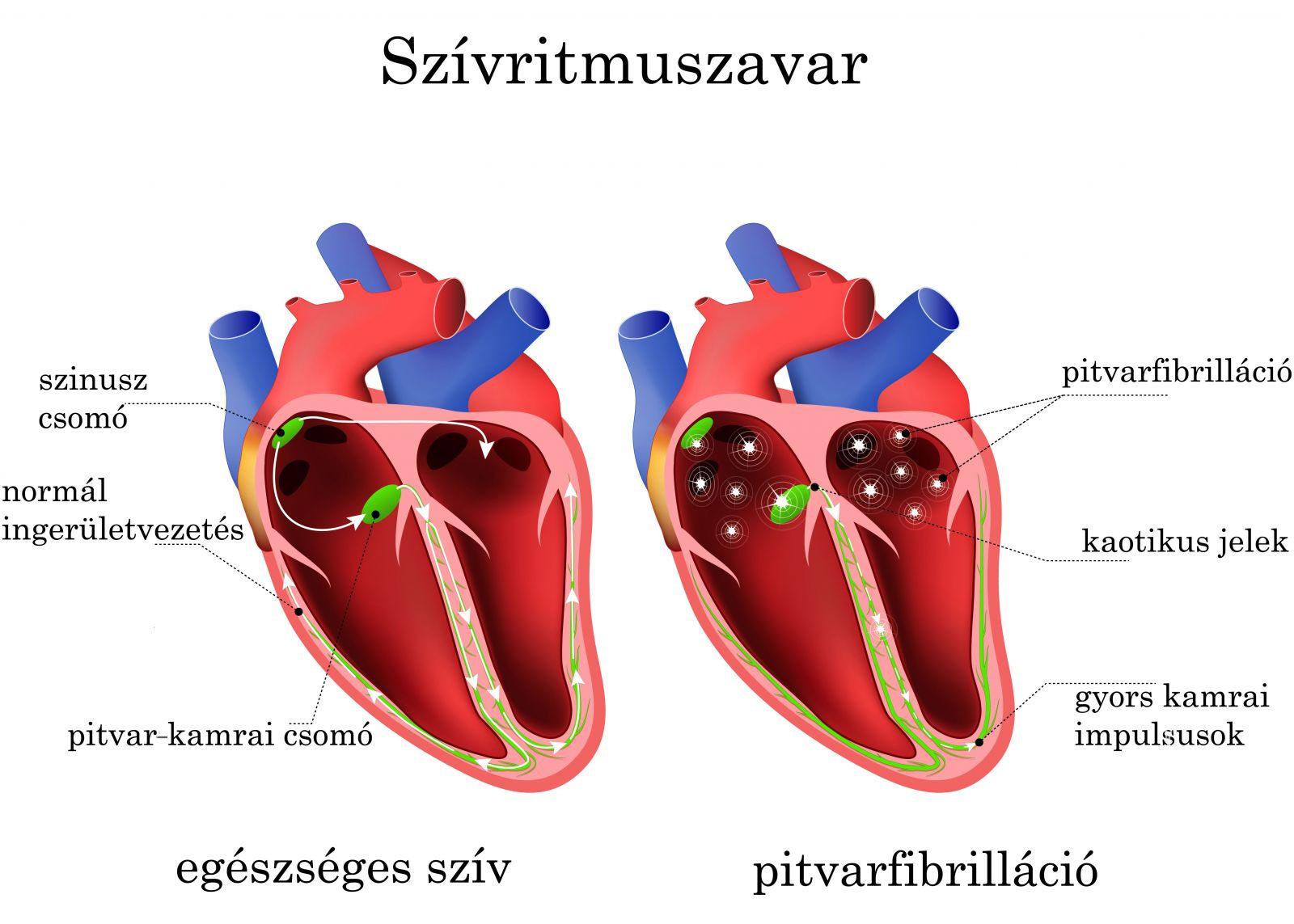 magas vérnyomás és ritmuszavar kezelése)