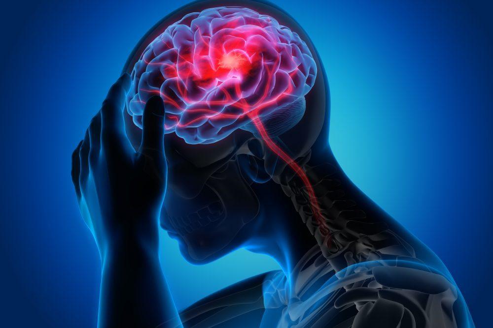 magas vérnyomású stroke)