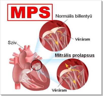 magas vérnyomás a szív hallgatózása)