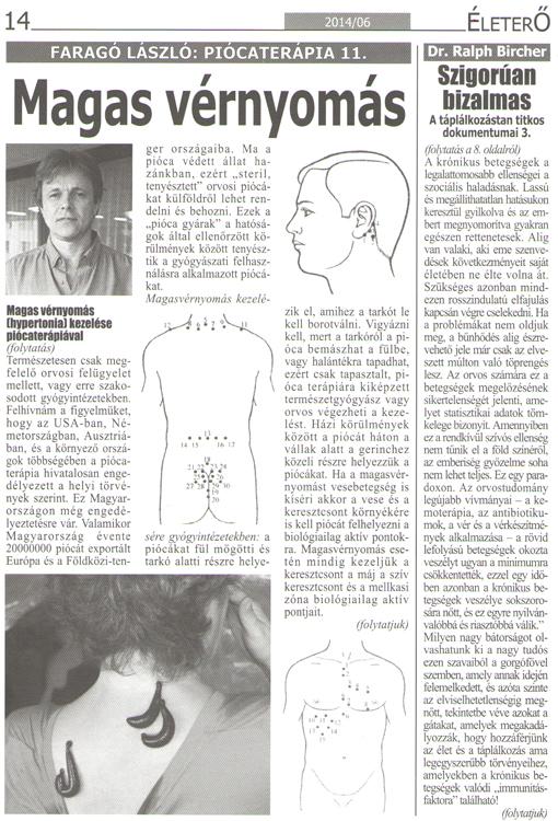 mi a hirudoterápia magas vérnyomás esetén)