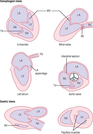 echo cs hipertónia esetén