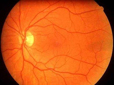 a szem artériák hipertóniája szűkül)