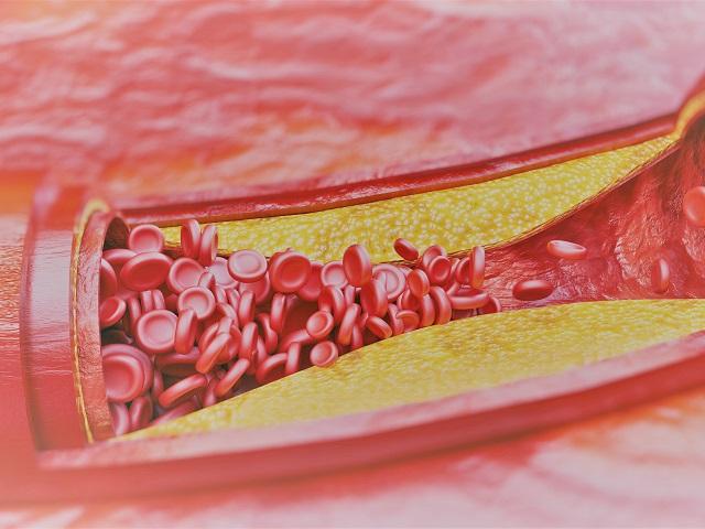 magas vérnyomás a nyaki erekből