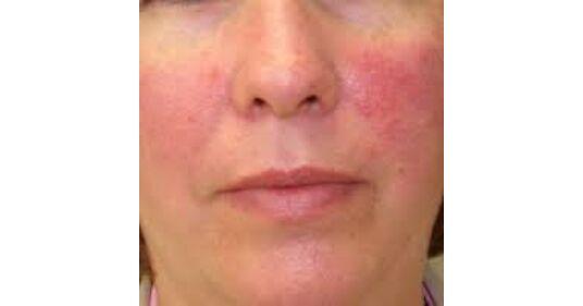 magas vérnyomás esetén az arc vörös lesz)