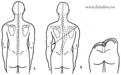 Scoliosis - mi az, okai, tünetei, kezelése, gerincvelői gyulladás hatása - Masszázs -