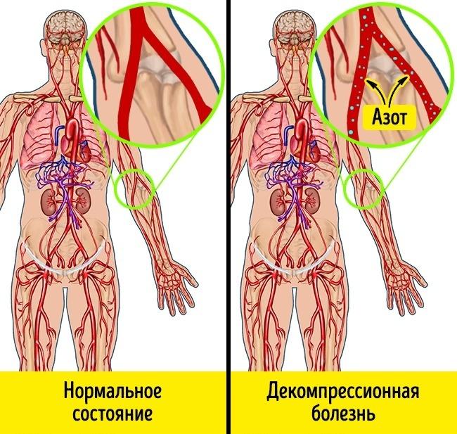 megugrik a légköri nyomás és a magas vérnyomás megugrik a légköri nyomás és a magas vérnyomás