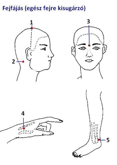 akupunktúra és magas vérnyomás