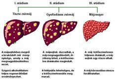 magas vérnyomás kihívás kártya)