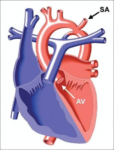 a pulmonalis keringés hipertóniájának patogenezise