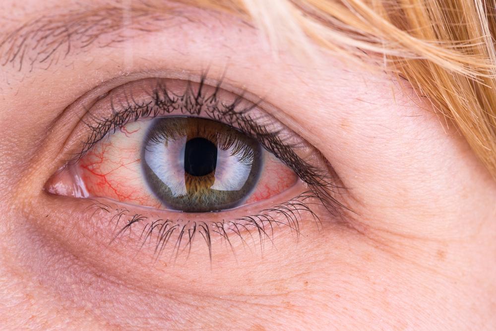 magas vérnyomás esetén a szem fáj