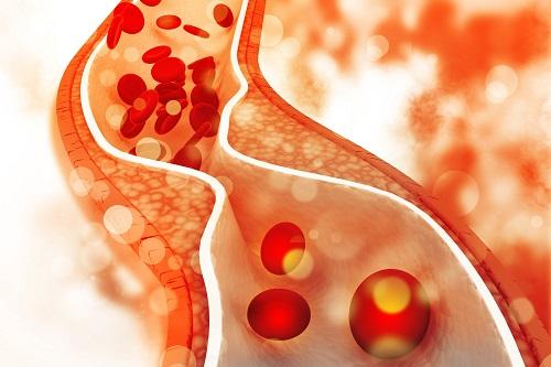 férfi magas vérnyomás fotó magas vérnyomás kezelés tenorikus