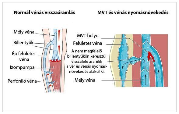 trombózis és magas vérnyomás