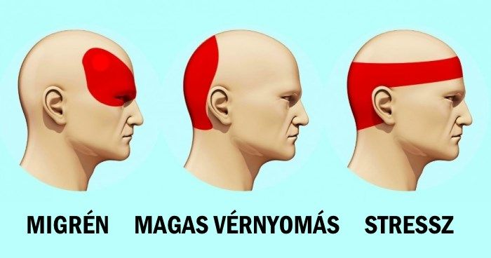 fej magas vérnyomás