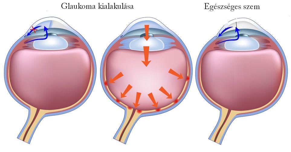 Mi okozza a magas szemnyomást? - Az orvos válaszol