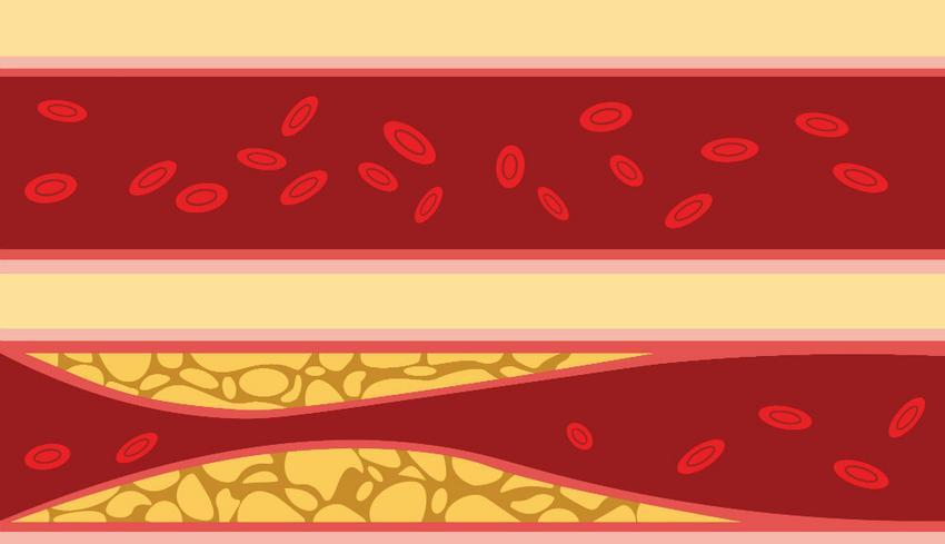 a magas vérnyomás második szakasza