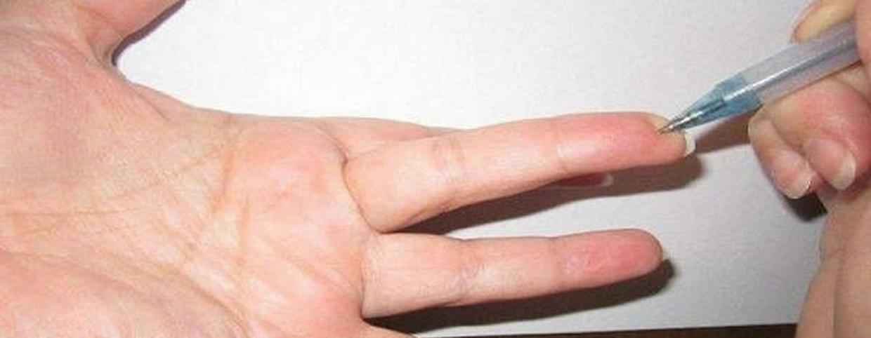 a kezek megremegnek a magas vérnyomásban)