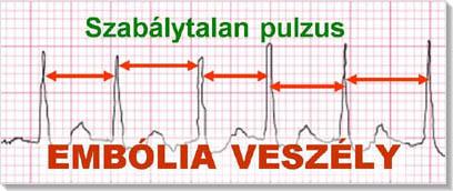 szívritmuszavarok kezelése magas vérnyomással