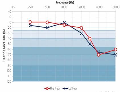 halláskárosodás és magas vérnyomás