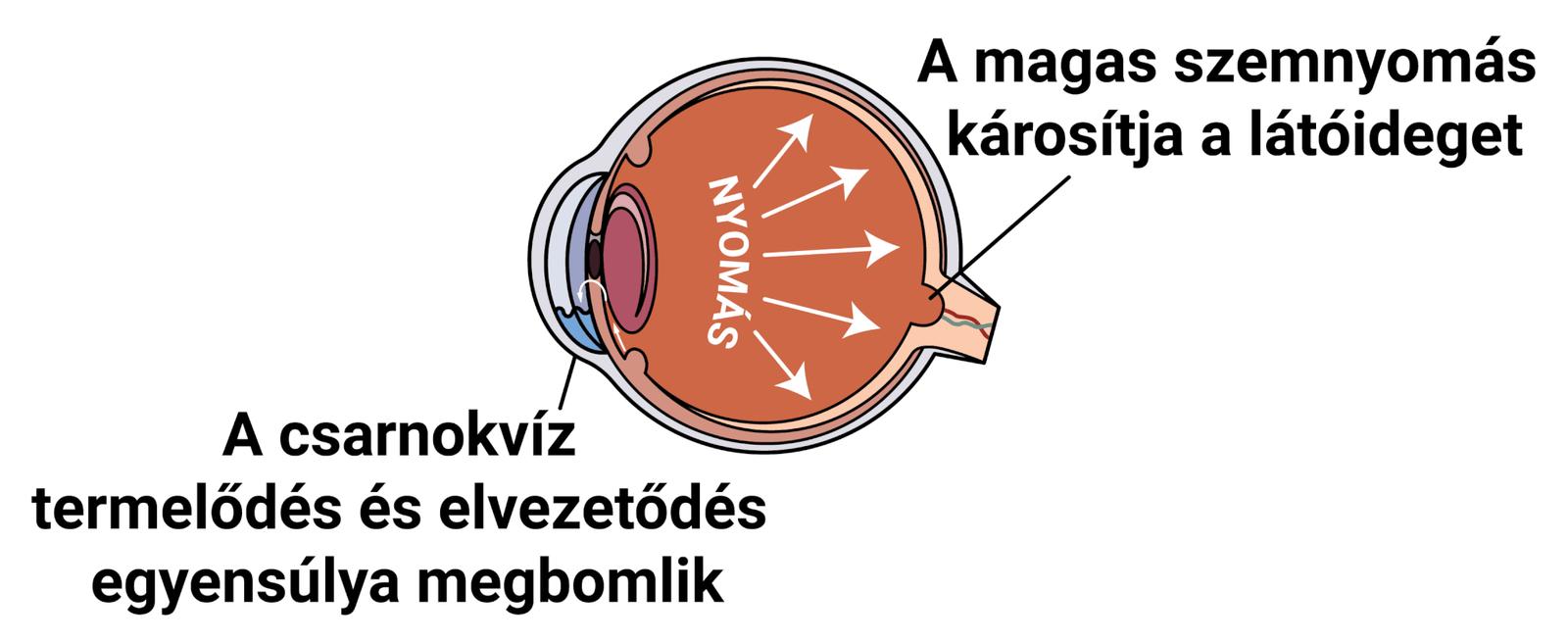 Nyomás a szemre - Vérömleny