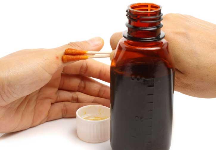 jód a magas vérnyomás kezelésére